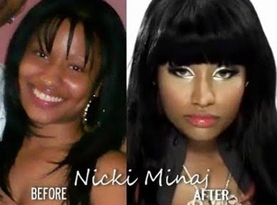 Nicki Minaj Before & After