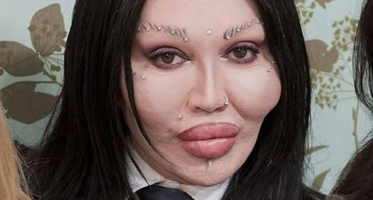 Pete Burns RIP Botch Surgery Face